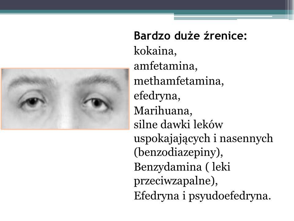 Bardzo duże źrenice: kokaina, amfetamina, methamfetamina, efedryna, Marihuana, silne dawki leków uspokajających i nasennych (benzodiazepiny), Benzydam