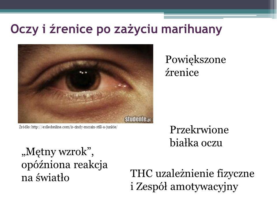 """Oczy i źrenice po zażyciu marihuany Powiększone źrenice Przekrwione białka oczu """"Mętny wzrok"""", opóźniona reakcja na światło Źródło: http://exiledonlin"""