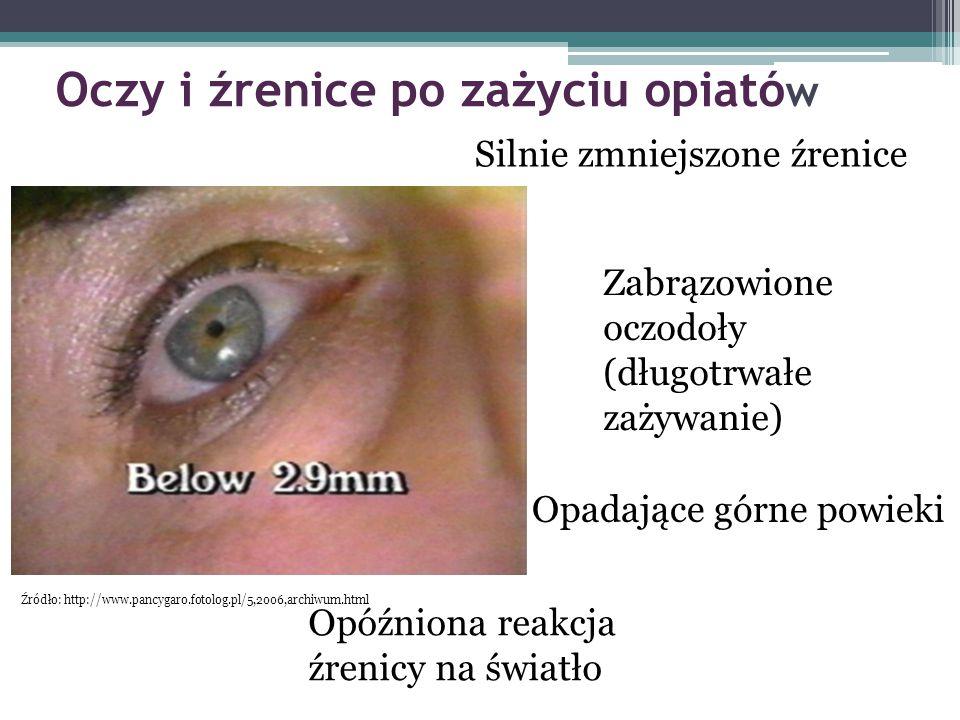 Oczy i źrenice po zażyciu opiató w Silnie zmniejszone źrenice Zabrązowione oczodoły (długotrwałe zażywanie) Opadające górne powieki Opóźniona reakcja