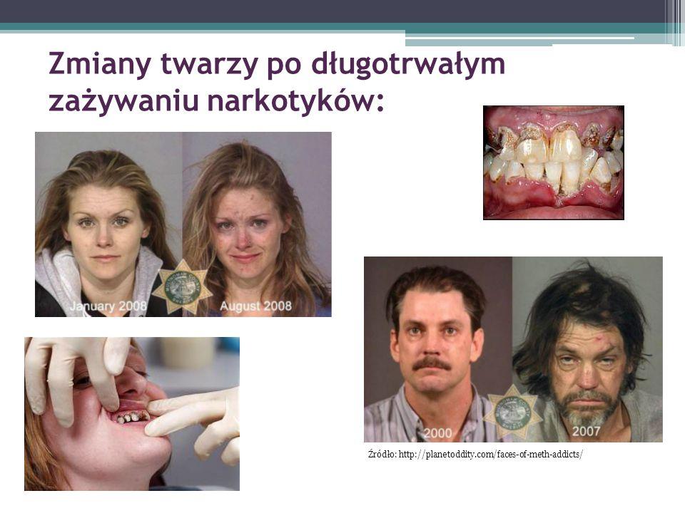 Zmiany twarzy po długotrwałym zażywaniu narkotyków: Źródło: http://planetoddity.com/faces-of-meth-addicts/
