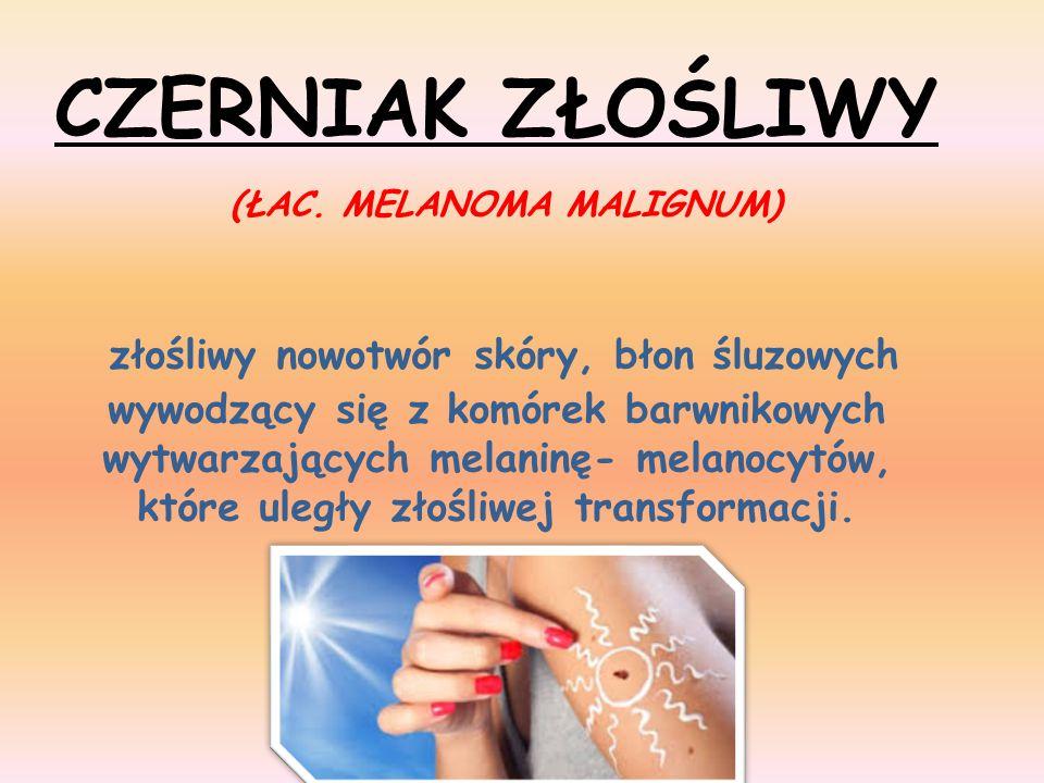 CZERNIAK ZŁOŚLIWY (ŁAC. MELANOMA MALIGNUM) złośliwy nowotwór skóry, błon śluzowych wywodzący się z komórek barwnikowych wytwarzających melaninę- melan