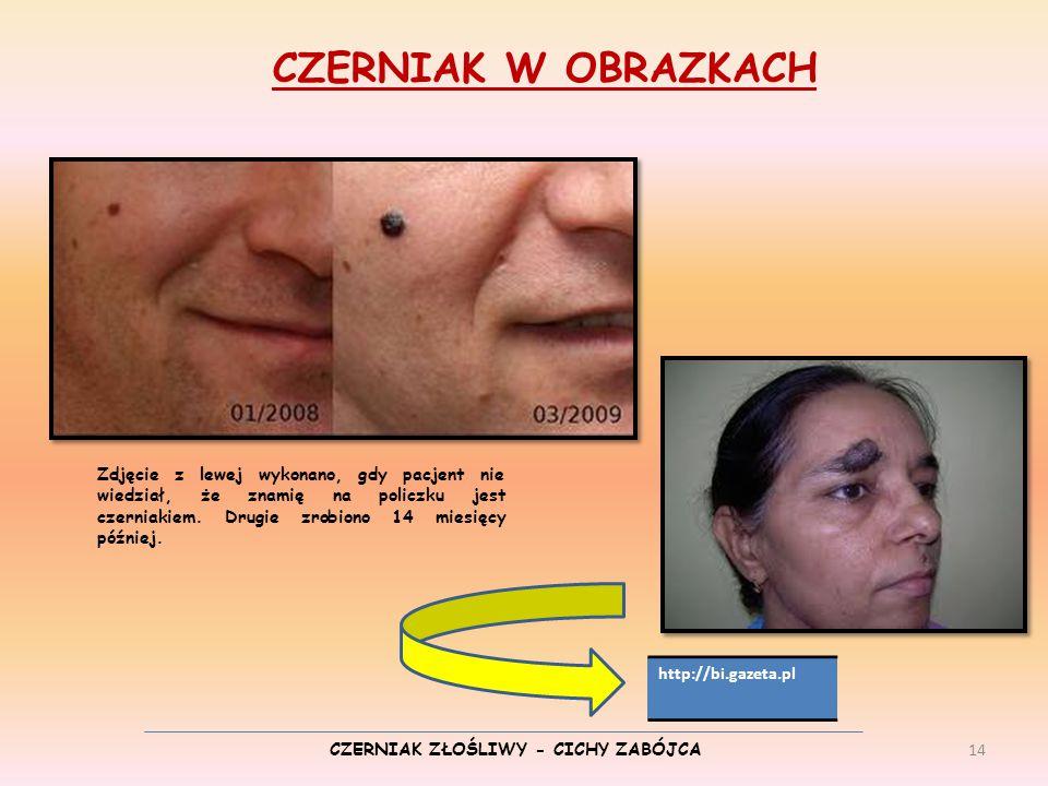 CZERNIAK ZŁOŚLIWY - CICHY ZABÓJCA CZERNIAK W OBRAZKACH Zdjęcie z lewej wykonano, gdy pacjent nie wiedział, że znamię na policzku jest czerniakiem. Dru
