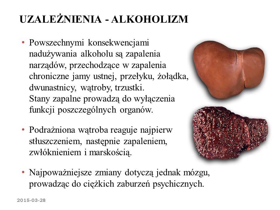 UZALEŻNIENIA - ALKOHOLIZM 2015-03-28 Powszechnymi konsekwencjami nadużywania alkoholu są zapalenia narządów, przechodzące w zapalenia chroniczne jamy