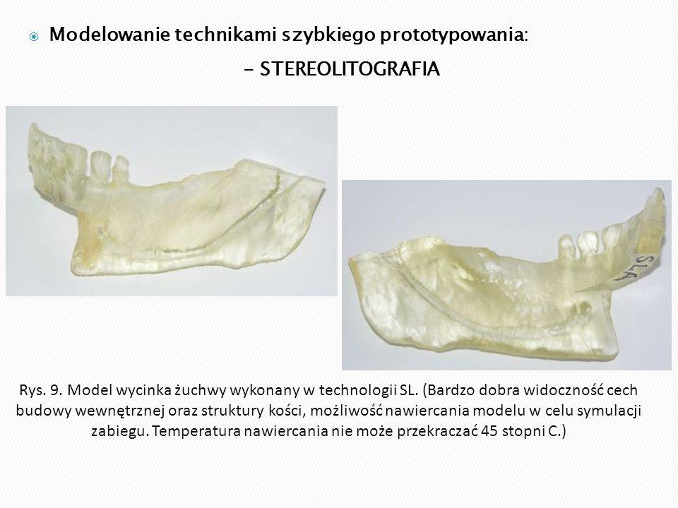 Rys. 9. Model wycinka żuchwy wykonany w technologii SL. (Bardzo dobra widoczność cech budowy wewnętrznej oraz struktury kości, możliwość nawiercania m