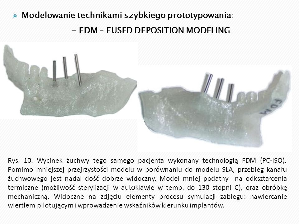  Modelowanie technikami szybkiego prototypowania: - FDM – FUSED DEPOSITION MODELING Rys. 10. Wycinek żuchwy tego samego pacjenta wykonany technologią