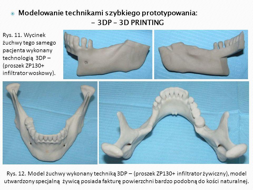  Modelowanie technikami szybkiego prototypowania: - 3DP – 3D PRINTING Rys. 11. Wycinek żuchwy tego samego pacjenta wykonany technologią 3DP – (prosze