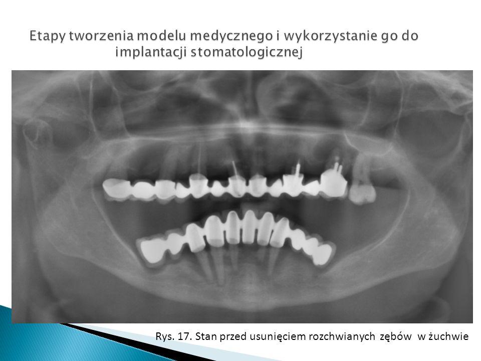 Rys. 17. Stan przed usunięciem rozchwianych zębów w żuchwie