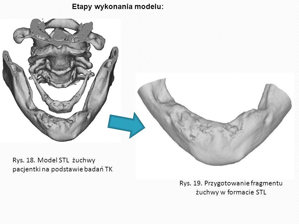 Rys. 19. Przygotowanie fragmentu żuchwy w formacie STL Rys. 18. Model STL żuchwy pacjentki na podstawie badań TK Etapy wykonania modelu: