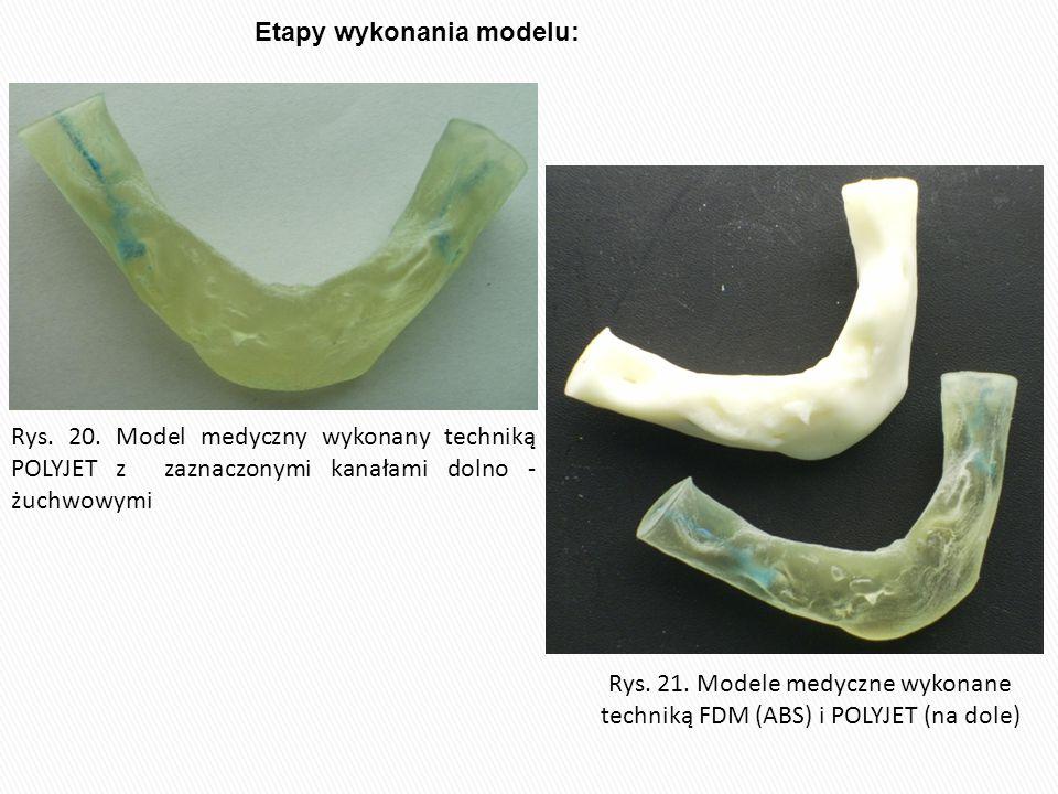 Rys. 21. Modele medyczne wykonane techniką FDM (ABS) i POLYJET (na dole) Rys. 20. Model medyczny wykonany techniką POLYJET z zaznaczonymi kanałami dol