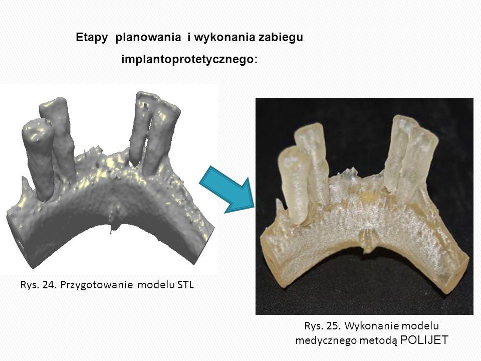 Rys. 25. Wykonanie modelu medycznego metodą POLIJET Rys. 24. Przygotowanie modelu STL Etapy planowania i wykonania zabiegu implantoprotetycznego: