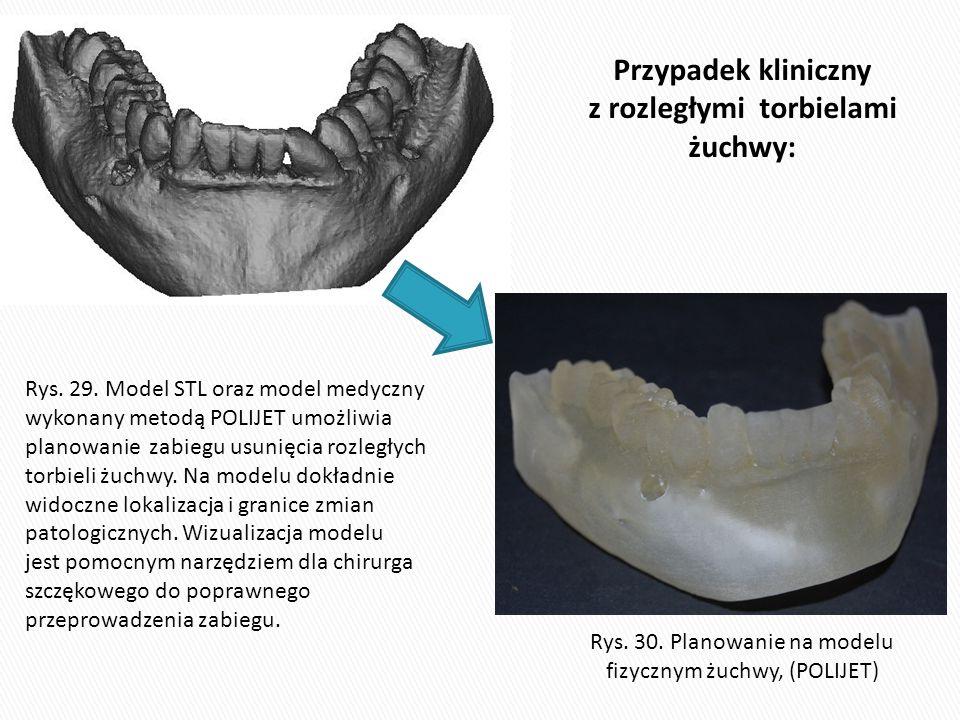 Rys. 30. Planowanie na modelu fizycznym żuchwy, (POLIJET) Rys. 29. Model STL oraz model medyczny wykonany metodą POLIJET umożliwia planowanie zabiegu