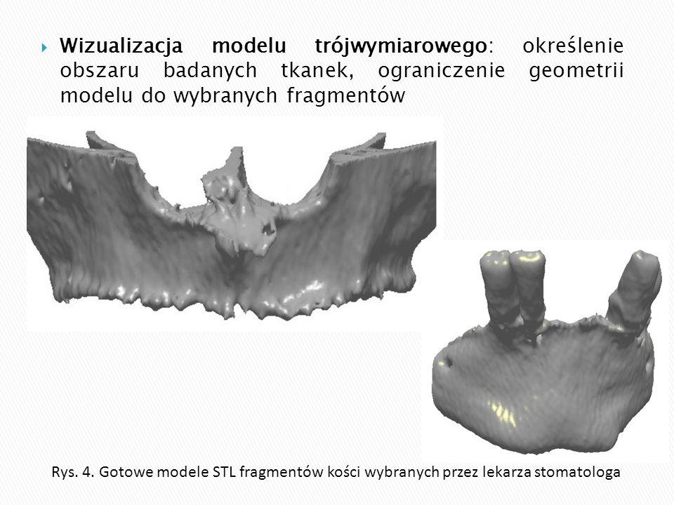  Wizualizacja modelu trójwymiarowego: określenie obszaru badanych tkanek, ograniczenie geometrii modelu do wybranych fragmentów Rys. 4. Gotowe modele