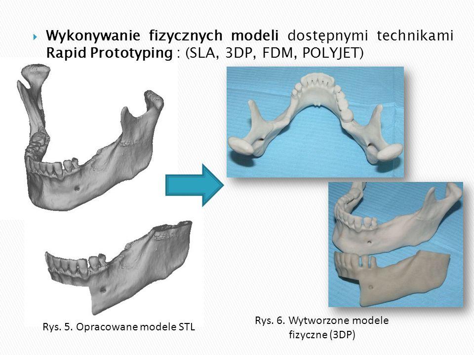  Wykonywanie fizycznych modeli dostępnymi technikami Rapid Prototyping : (SLA, 3DP, FDM, POLYJET) Rys. 5. Opracowane modele STL Rys. 6. Wytworzone mo
