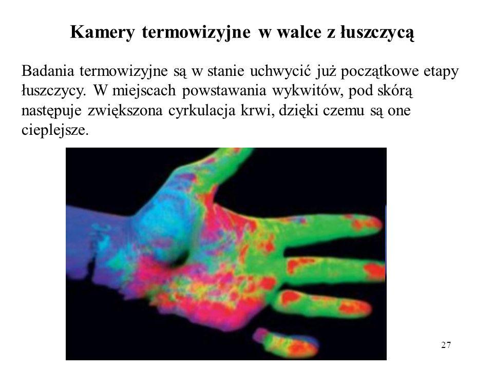 27 Kamery termowizyjne w walce z łuszczycą Badania termowizyjne są w stanie uchwycić już początkowe etapy łuszczycy. W miejscach powstawania wykwitów,