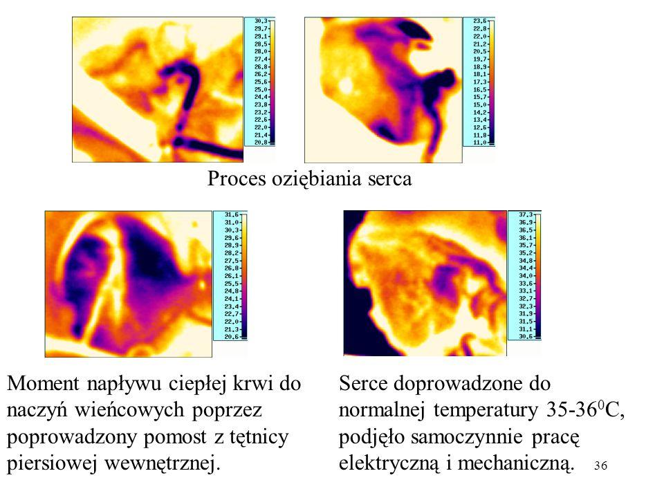 36 Proces oziębiania serca Moment napływu ciepłej krwi do naczyń wieńcowych poprzez poprowadzony pomost z tętnicy piersiowej wewnętrznej. Serce doprow