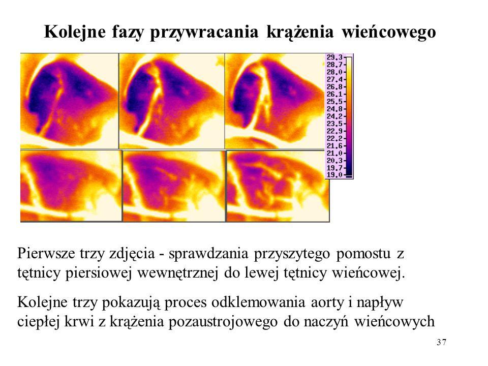 37 Kolejne fazy przywracania krążenia wieńcowego Pierwsze trzy zdjęcia - sprawdzania przyszytego pomostu z tętnicy piersiowej wewnętrznej do lewej tęt
