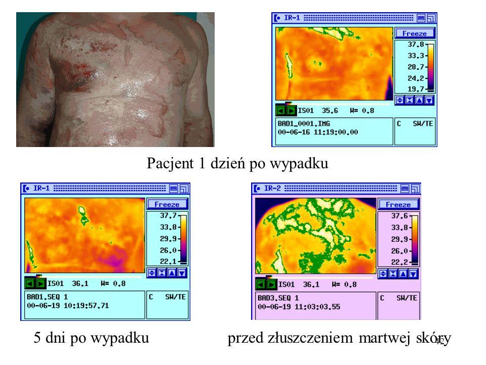 42 Pacjent 1 dzień po wypadku 5 dni po wypadkuprzed złuszczeniem martwej skóry
