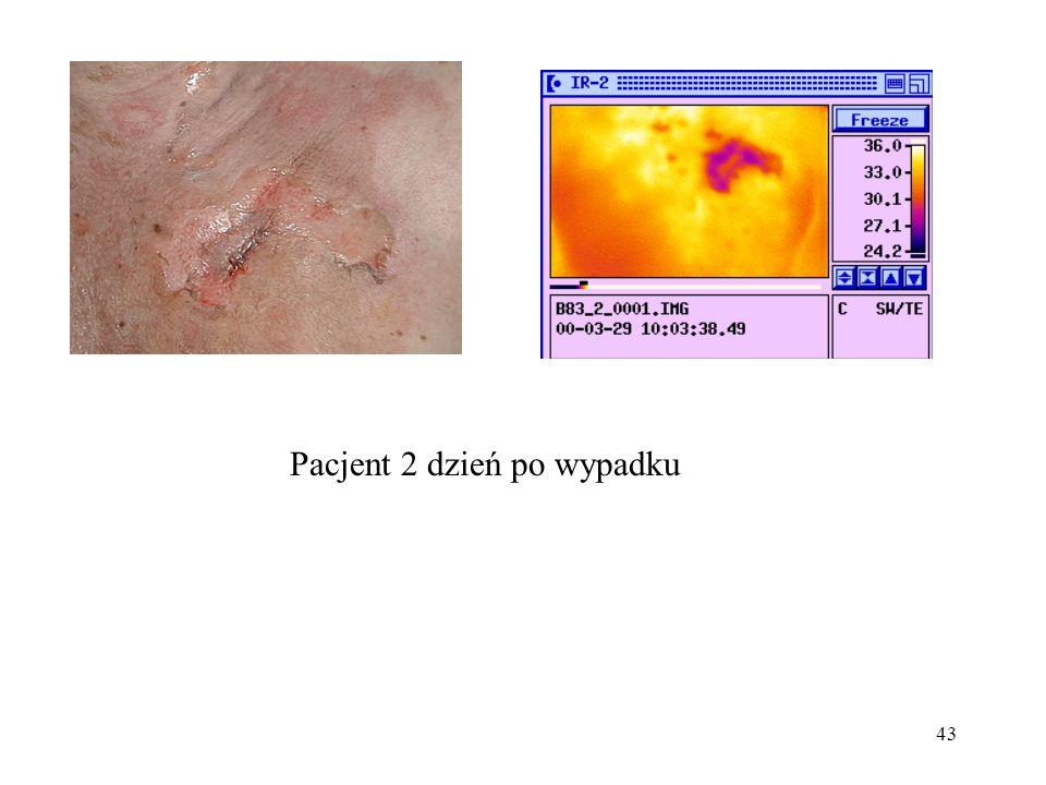 43 Pacjent 2 dzień po wypadku