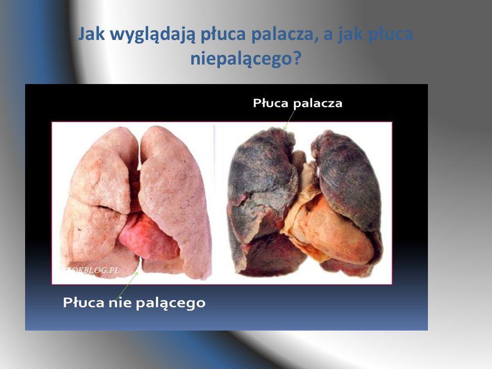 Jak wyglądają płuca palacza, a jak płuca niepalącego?