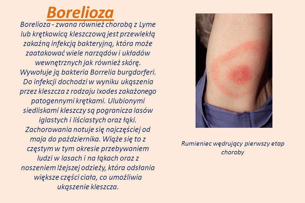 Borelioza Borelioza - zwana również chorobą z Lyme lub krętkowicą kleszczową jest przewlekłą zakaźną infekcją bakteryjną, która może zaatakować wiele