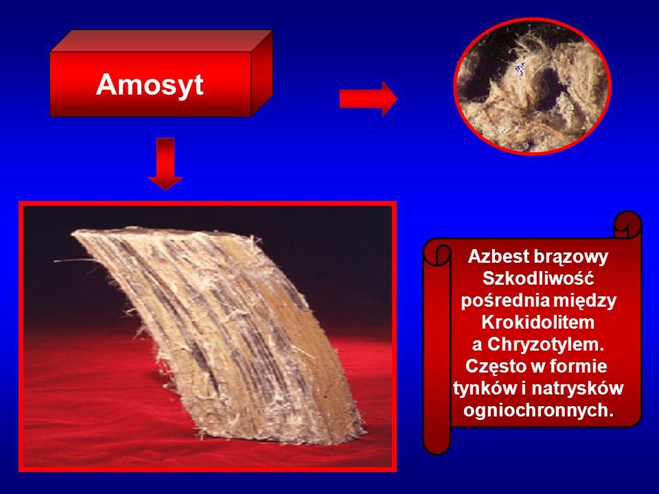 Eternit czyli płyty azbestowo-cementowe, zawierają 10-13% azbestu Są najczęstszym źródłem występowania azbestu – stosowane do pokrycia dachów, elewacji ścian budynków.