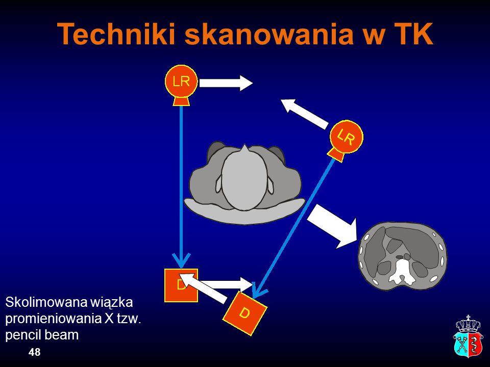 48 Techniki skanowania w TK Skolimowana wiązka promieniowania X tzw. pencil beam