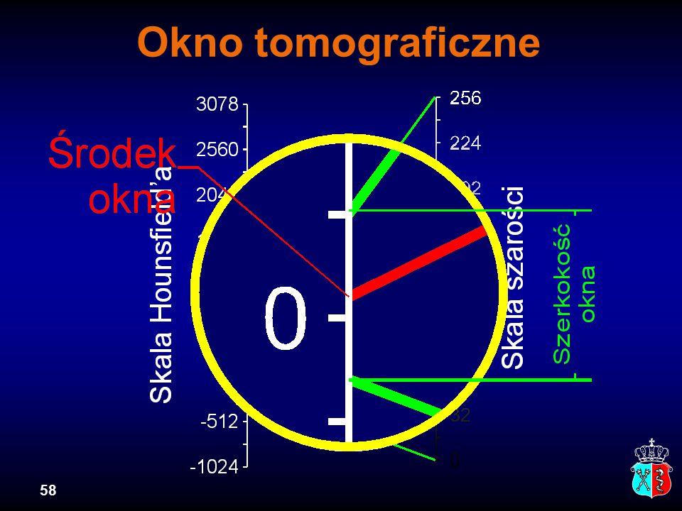58 Okno tomograficzne