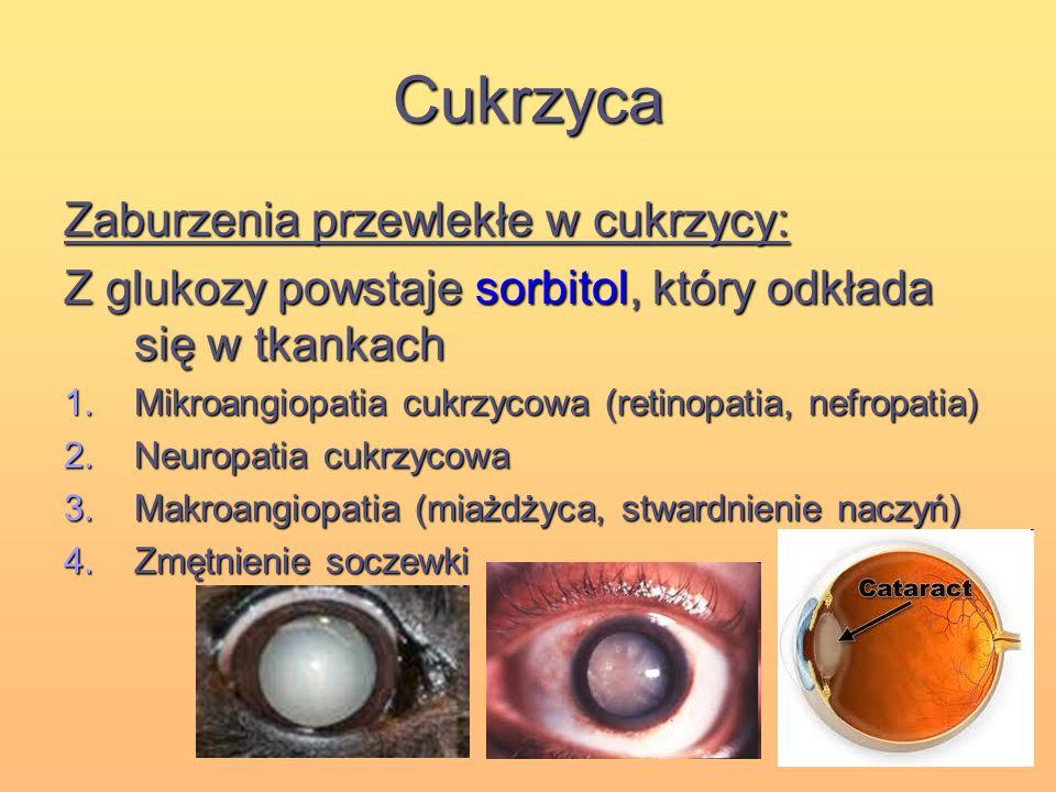 Cukrzyca Zaburzenia przewlekłe w cukrzycy: Z glukozy powstaje sorbitol, który odkłada się w tkankach 1.Mikroangiopatia cukrzycowa (retinopatia, nefrop