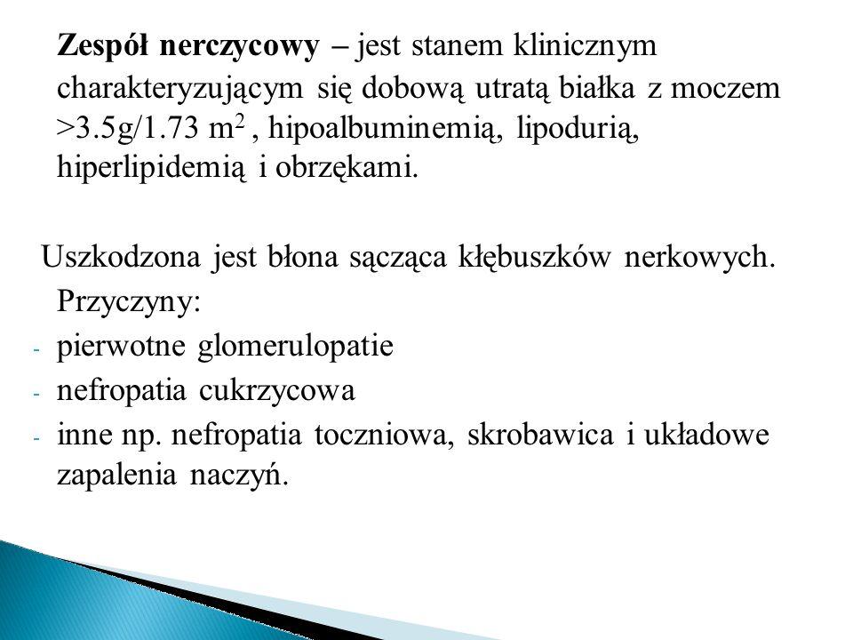 Zespół nerczycowy – jest stanem klinicznym charakteryzującym się dobową utratą białka z moczem >3.5g/1.73 m 2, hipoalbuminemią, lipodurią, hiperlipide