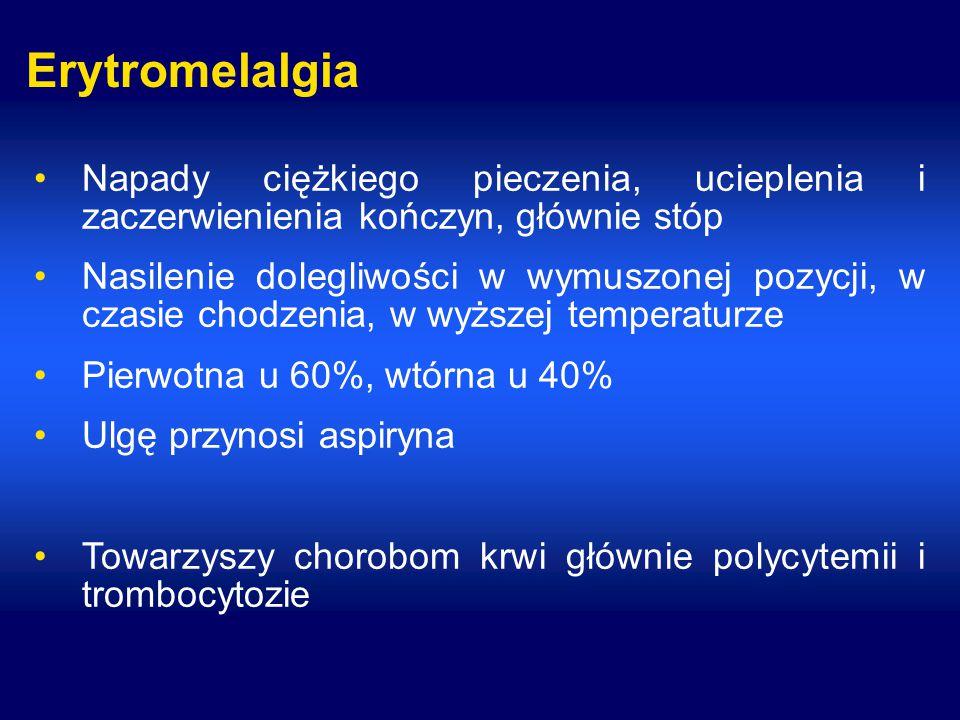 Erytromelalgia Napady ciężkiego pieczenia, ucieplenia i zaczerwienienia kończyn, głównie stóp Nasilenie dolegliwości w wymuszonej pozycji, w czasie chodzenia, w wyższej temperaturze Pierwotna u 60%, wtórna u 40% Ulgę przynosi aspiryna Towarzyszy chorobom krwi głównie polycytemii i trombocytozie