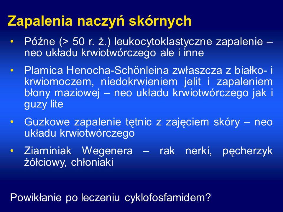 Zapalenia naczyń skórnych Późne (> 50 r.
