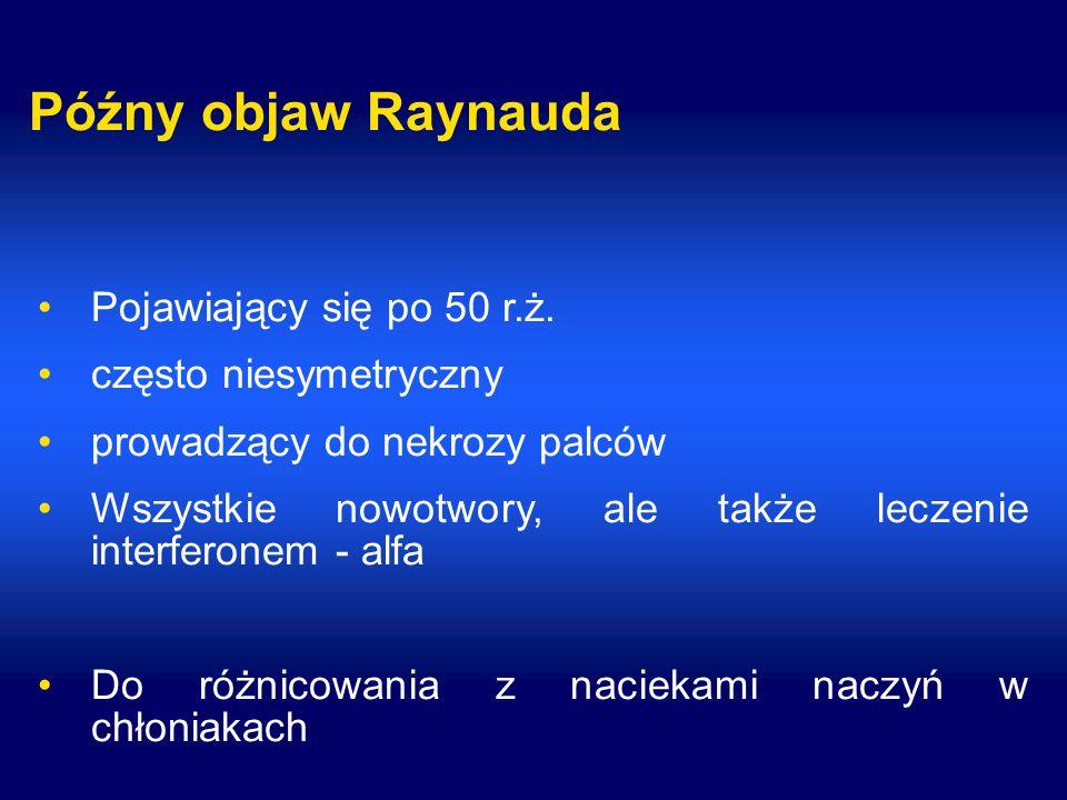 Późny objaw Raynauda Pojawiający się po 50 r.ż.