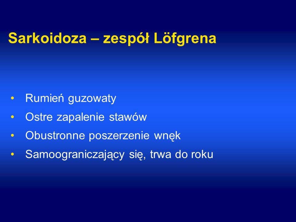 Sarkoidoza – zespół Löfgrena Rumień guzowaty Ostre zapalenie stawów Obustronne poszerzenie wnęk Samoograniczający się, trwa do roku