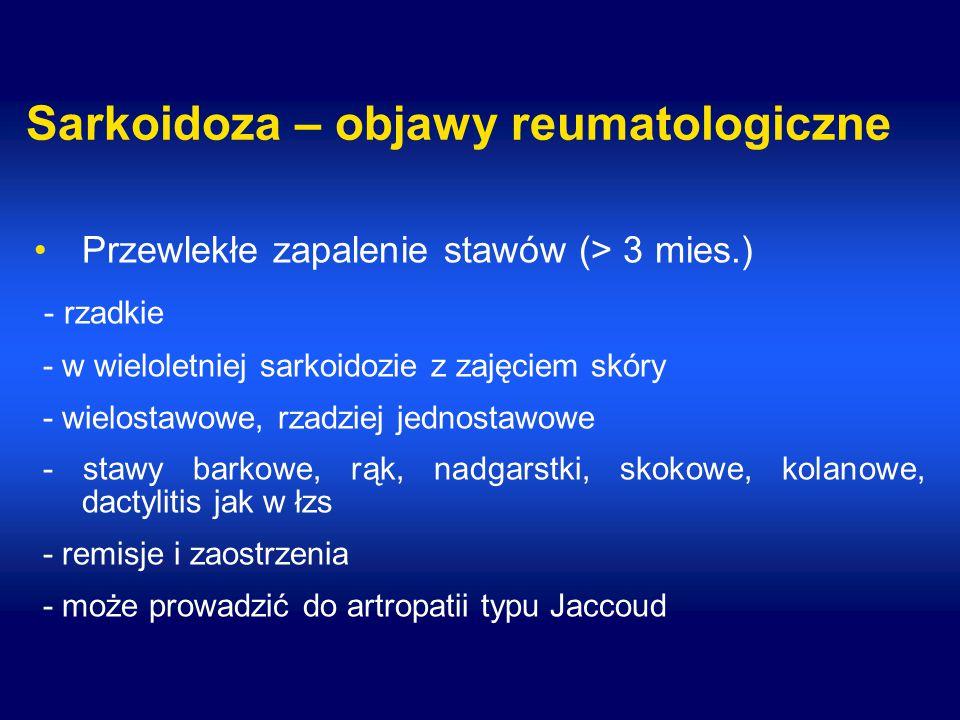 Sarkoidoza – objawy reumatologiczne Przewlekłe zapalenie stawów (> 3 mies.) - rzadkie - w wieloletniej sarkoidozie z zajęciem skóry - wielostawowe, rzadziej jednostawowe - stawy barkowe, rąk, nadgarstki, skokowe, kolanowe, dactylitis jak w łzs - remisje i zaostrzenia - może prowadzić do artropatii typu Jaccoud