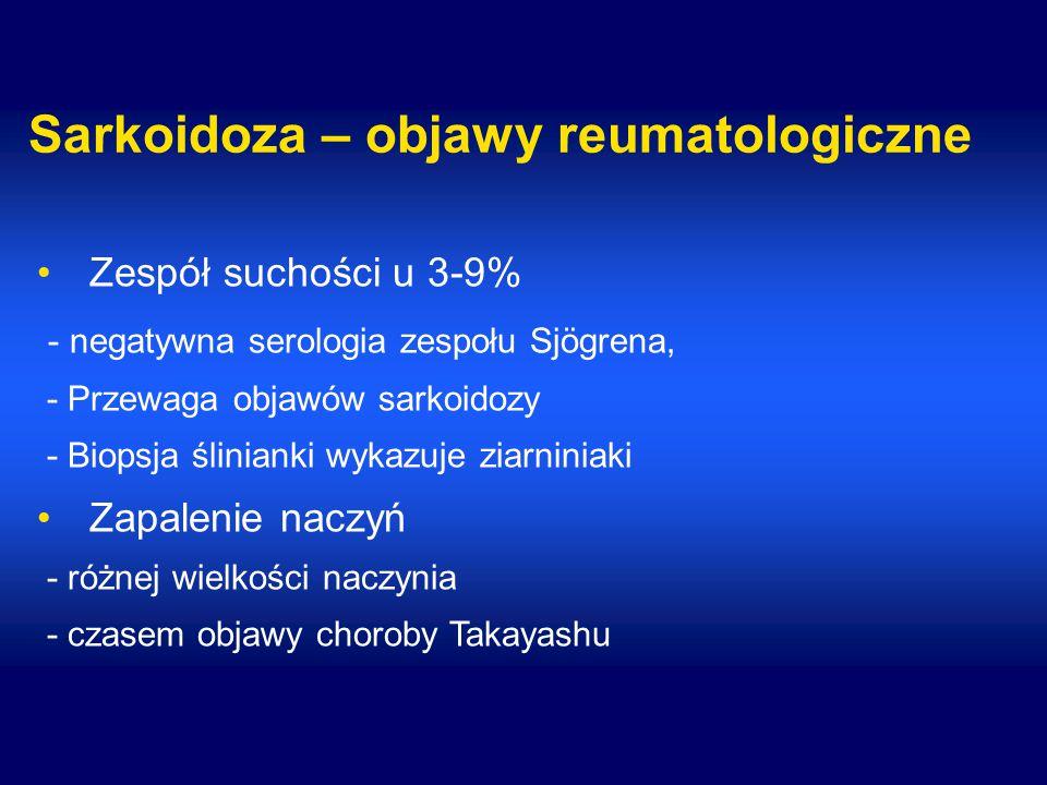 Sarkoidoza – objawy reumatologiczne Zespół suchości u 3-9% - negatywna serologia zespołu Sjögrena, - Przewaga objawów sarkoidozy - Biopsja ślinianki wykazuje ziarniniaki Zapalenie naczyń - różnej wielkości naczynia - czasem objawy choroby Takayashu