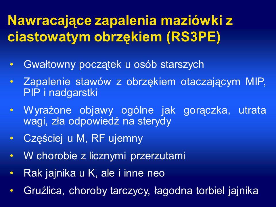 Nawracające zapalenia maziówki z ciastowatym obrzękiem (RS3PE) Gwałtowny początek u osób starszych Zapalenie stawów z obrzękiem otaczającym MIP, PIP i nadgarstki Wyrażone objawy ogólne jak gorączka, utrata wagi, zła odpowiedź na sterydy Częściej u M, RF ujemny W chorobie z licznymi przerzutami Rak jajnika u K, ale i inne neo Gruźlica, choroby tarczycy, łagodna torbiel jajnika