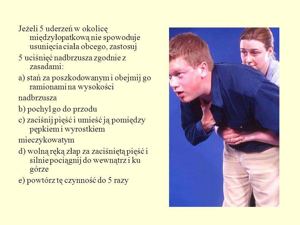 Jeżeli 5 uderzeń w okolicę międzyłopatkową nie spowoduje usunięcia ciała obcego, zastosuj 5 uciśnięć nadbrzusza zgodnie z zasadami: a) stań za poszkod