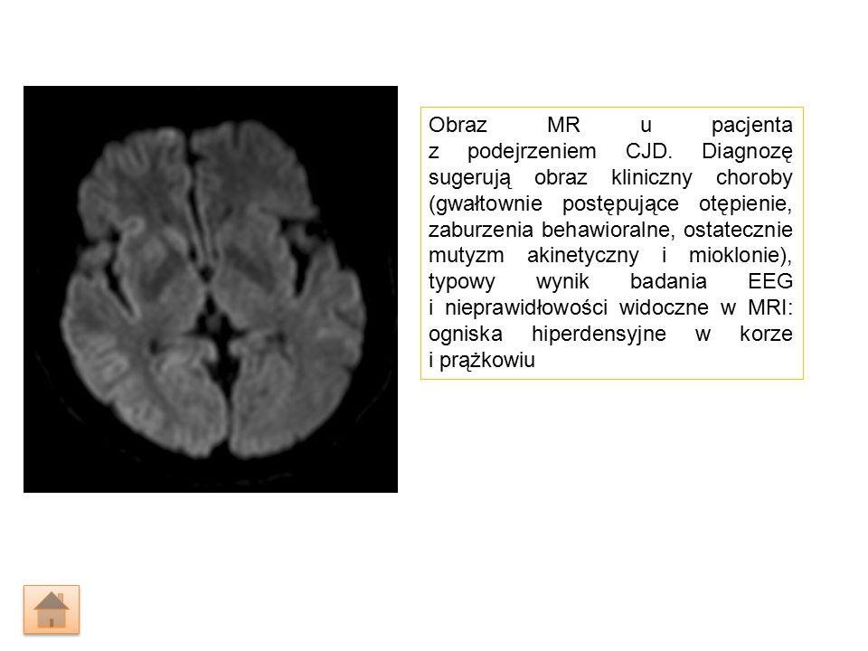 Obraz MR u pacjenta z podejrzeniem CJD.