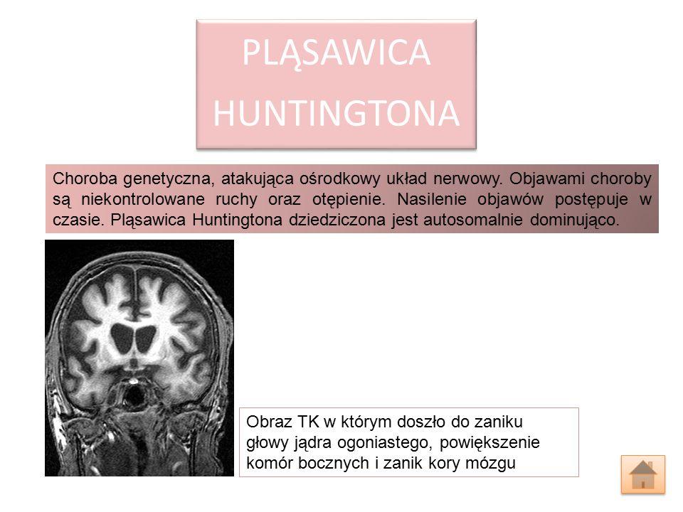 PLĄSAWICA HUNTINGTONA Choroba genetyczna, atakująca ośrodkowy układ nerwowy. Objawami choroby są niekontrolowane ruchy oraz otępienie. Nasilenie objaw