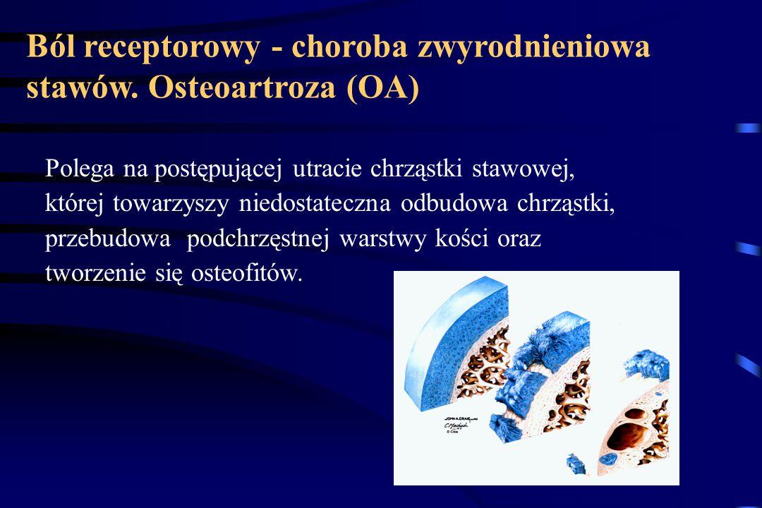 Ból receptorowy - choroba zwyrodnieniowa stawów.
