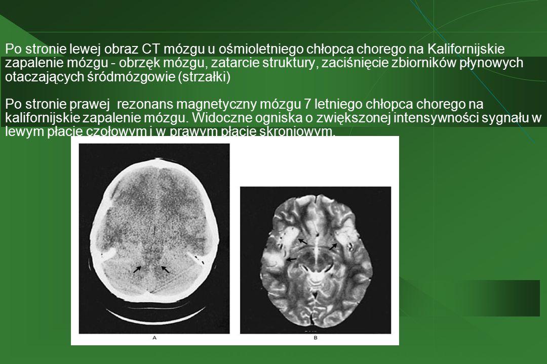 Po stronie lewej obraz CT mózgu u ośmioletniego chłopca chorego na Kalifornijskie zapalenie mózgu - obrzęk mózgu, zatarcie struktury, zaciśnięcie zbio