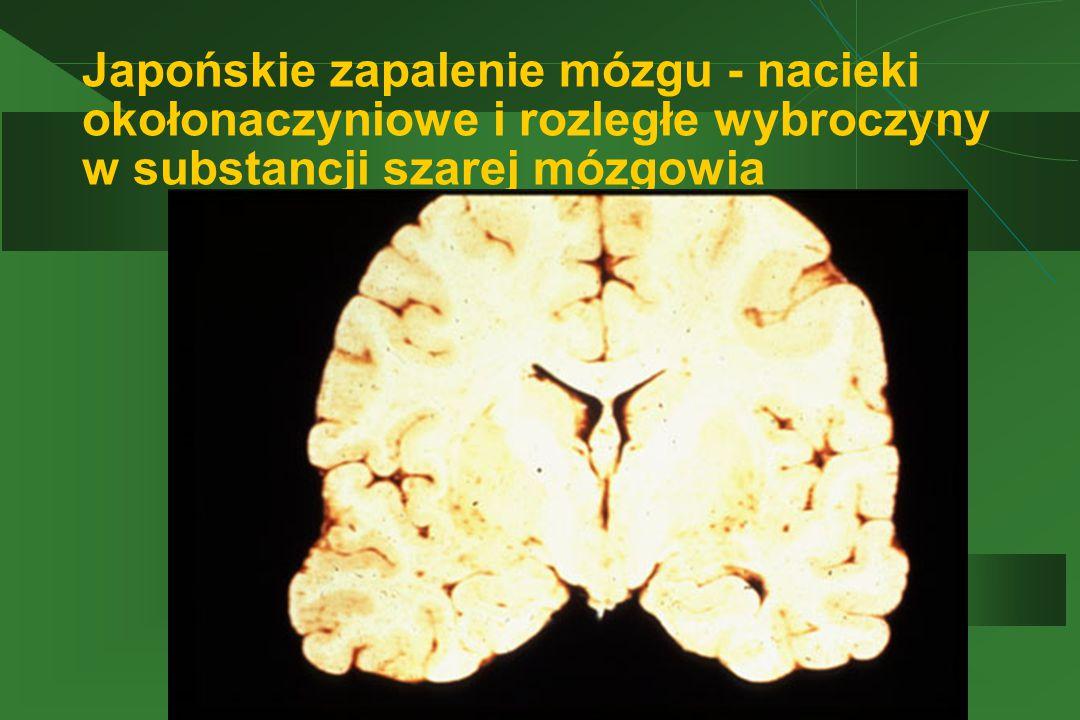 Japońskie zapalenie mózgu - nacieki okołonaczyniowe i rozległe wybroczyny w substancji szarej mózgowia