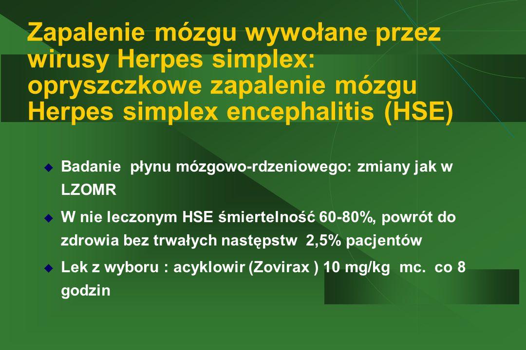 Zapalenie mózgu wywołane przez wirusy Herpes simplex: opryszczkowe zapalenie mózgu Herpes simplex encephalitis (HSE)  Badanie płynu mózgowo-rdzeniowe
