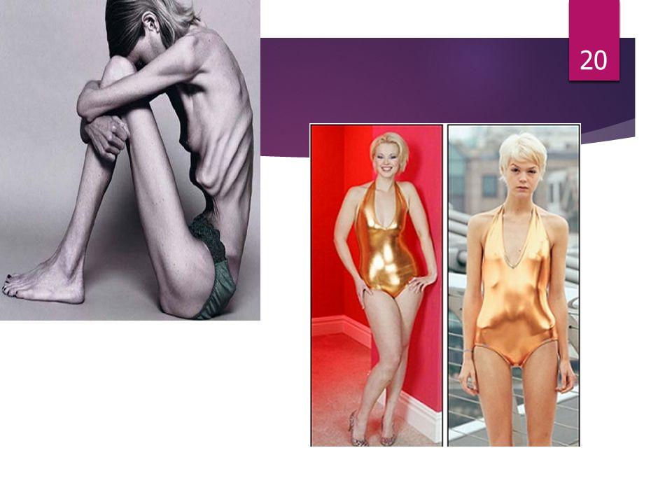 Jakie objawy fizyczne wskazują na anoreksję? o Odwodnienie (podsychający język, skóra którą można zebrać w fałd, która powoli powraca do swego zwykłeg