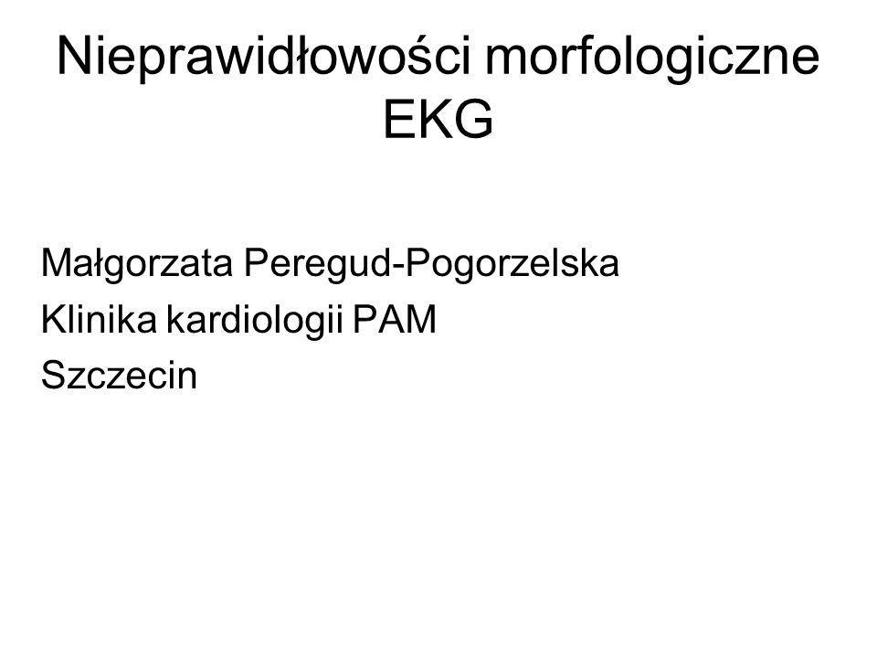 Nieprawidłowości morfologiczne EKG Małgorzata Peregud-Pogorzelska Klinika kardiologii PAM Szczecin