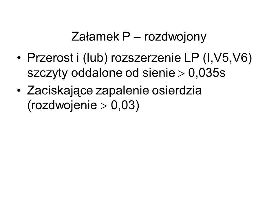 Przerost i (lub) rozszerzenie LP (I,V5,V6) szczyty oddalone od sienie  0,035s Zaciskające zapalenie osierdzia (rozdwojenie  0,03)