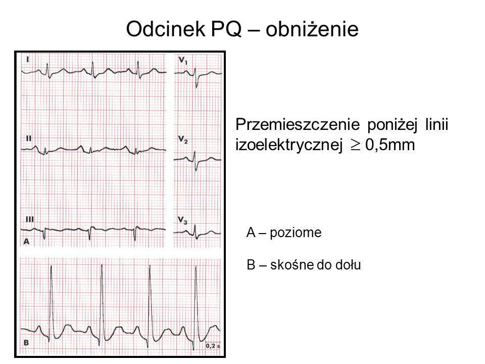 Odcinek PQ – obniżenie Przemieszczenie poniżej linii izoelektrycznej  0,5mm A – poziome B – skośne do dołu