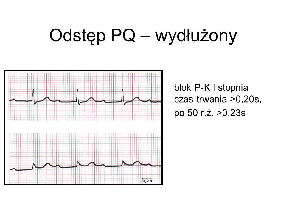Odstęp PQ – wydłużony blok P-K I stopnia czas trwania >0,20s, po 50 r.ż. >0,23s