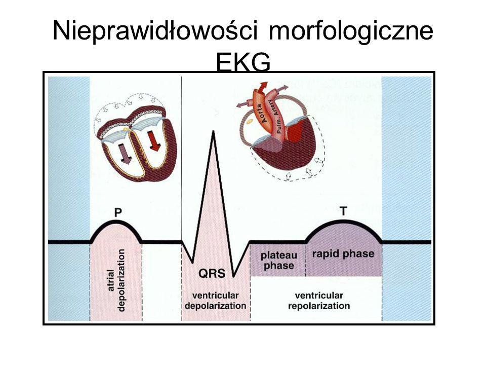 Nieprawidłowości morfologiczne EKG