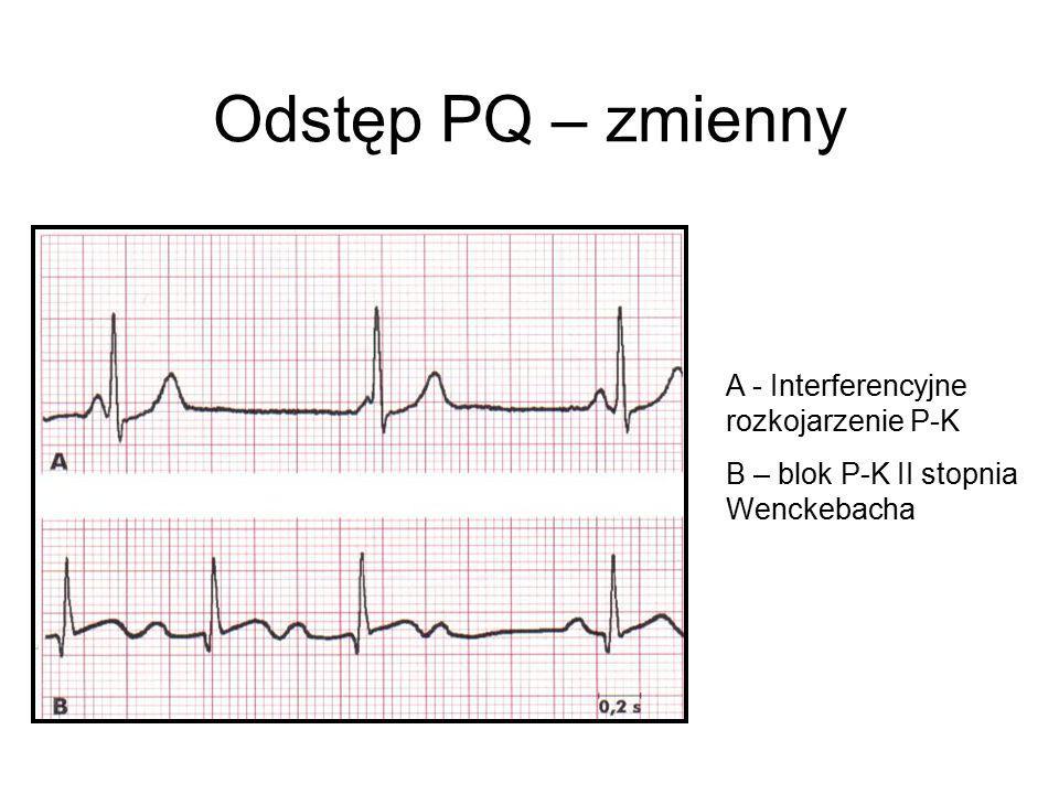 Odstęp PQ – zmienny A - Interferencyjne rozkojarzenie P-K B – blok P-K II stopnia Wenckebacha